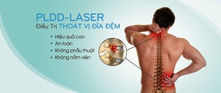 PLDD-Laser