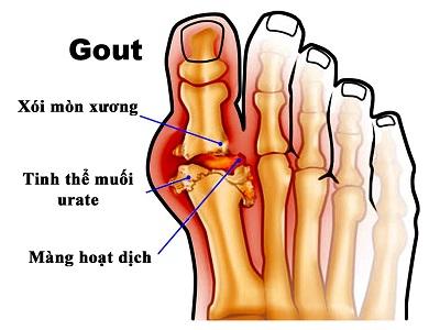 benh-gout