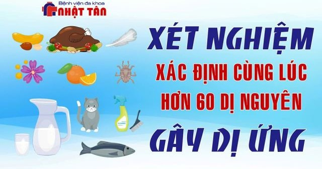 XN DI UNG 06-11